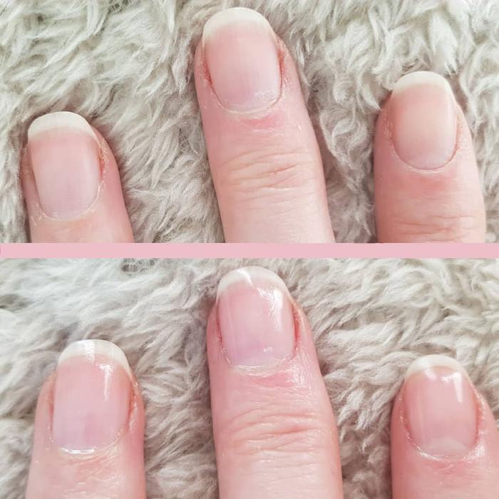 Ногти до и после обработки